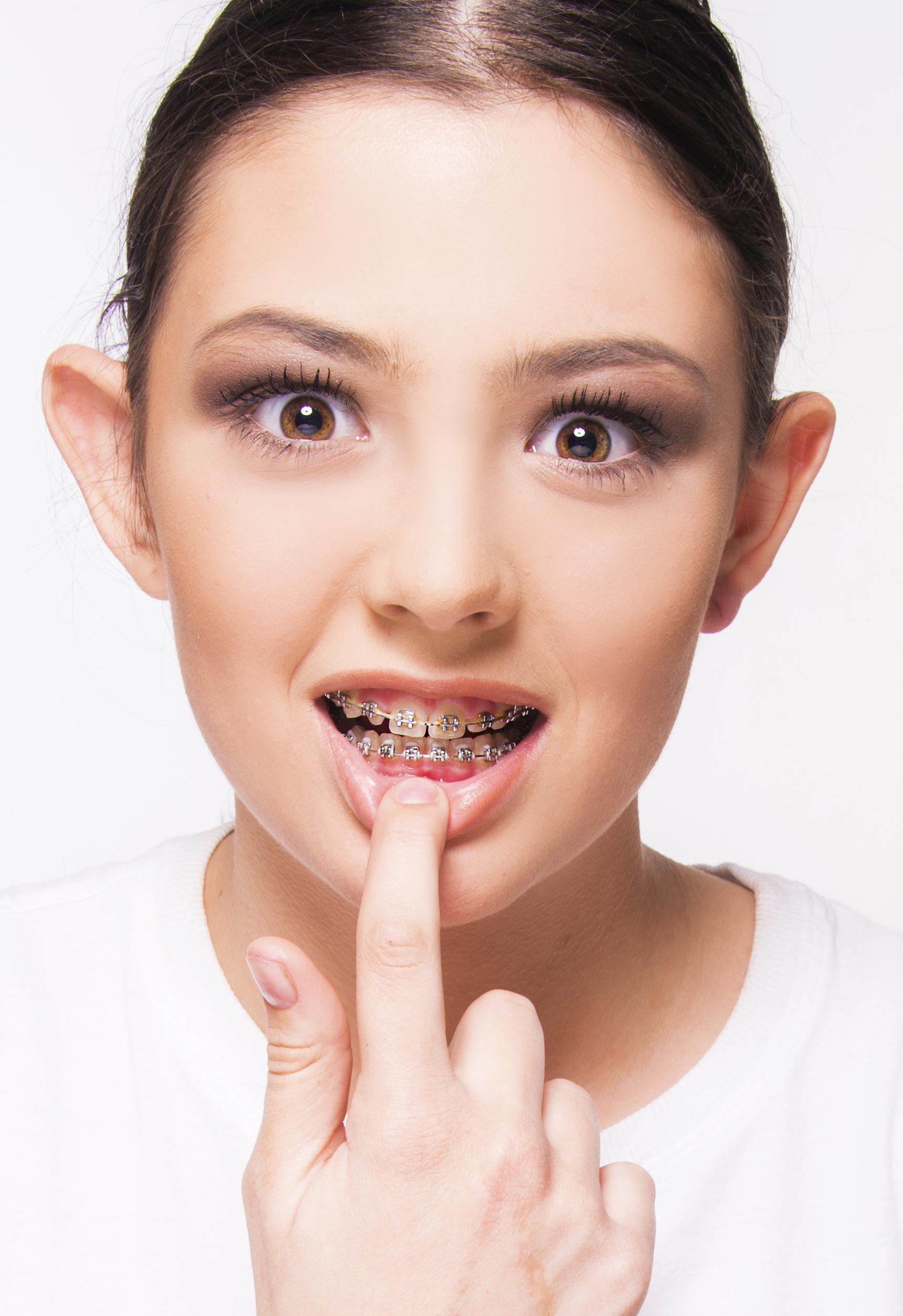 Feste Zahnspange Mädchen